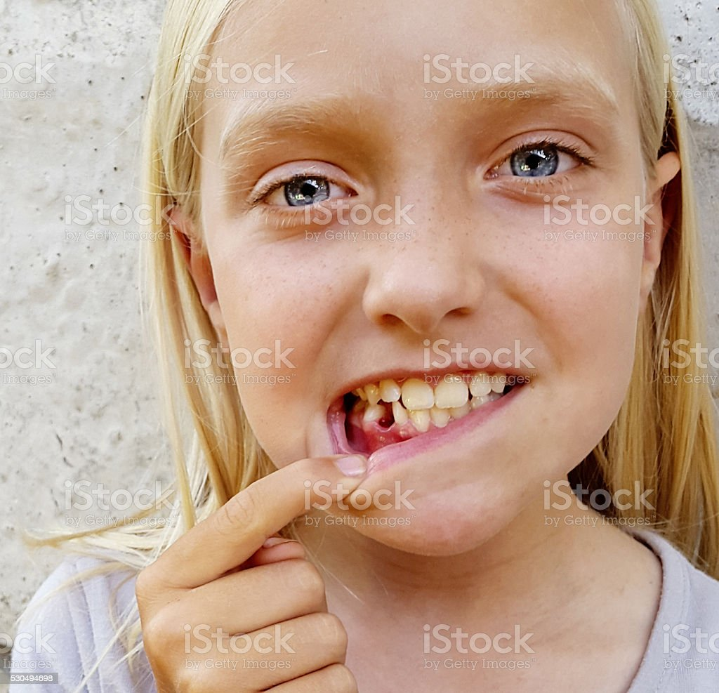 Cute little blonde girl showing her tooth gap stock photo
