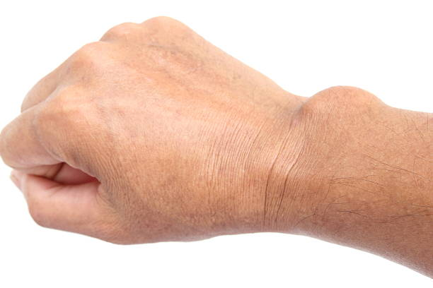 cyst on the hand - cyst stock pictures, royalty-free photos & images