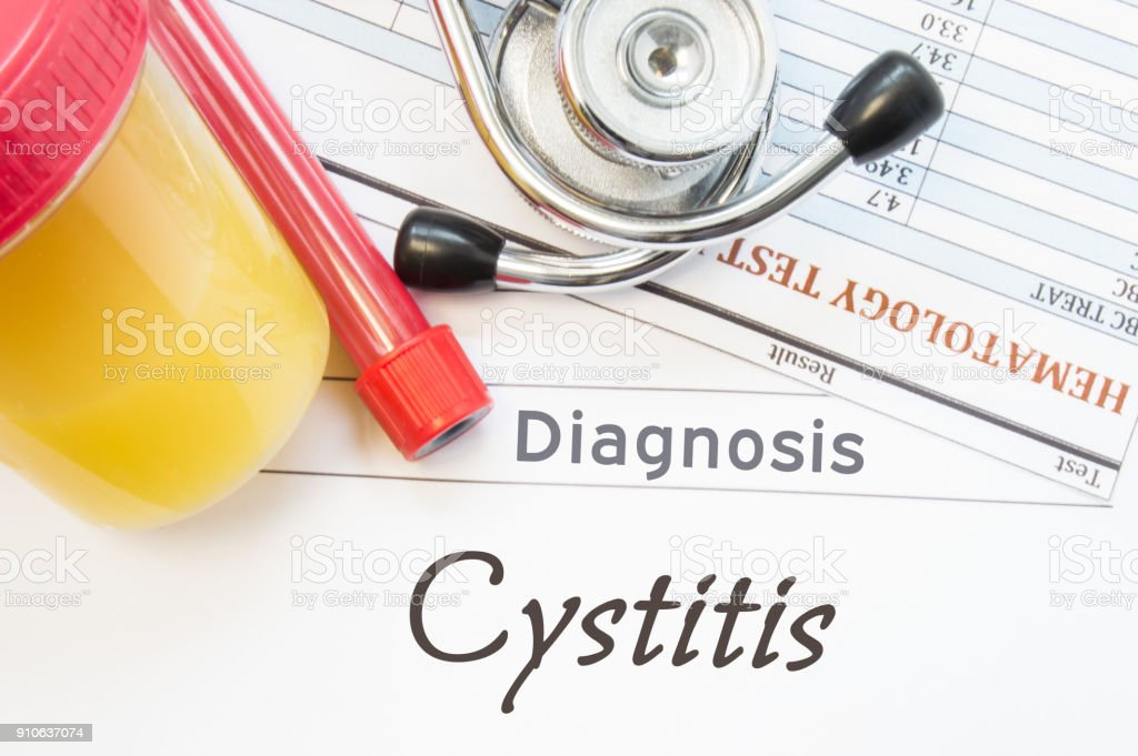Cystitis diagnosis. Laboratory container with urine sample, test tube with blood, stethoscope and blood test results hematology on white note inscribed with diagnosis of urologic disease Cystitis stock photo