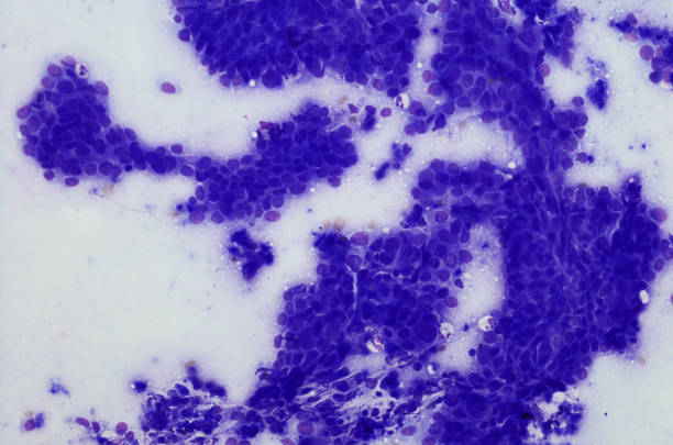 cytology of esophageal adenocarcinoma.  diff-quik stain - cytology stock pictures, royalty-free photos & images