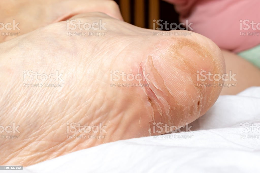 Damaged Crackeddry And Peeling Skin On A Heel Of Foot Close Up Dermatological Problems And Fungus Treatment Stock Photo Download Image Now Istock