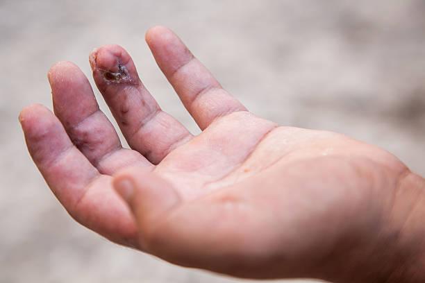 Damaged finger after operation. stock photo