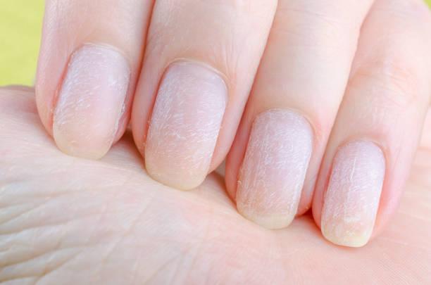 beschädigte Nägel nach dem Entfernen von modernem Gel Nagellack – Foto
