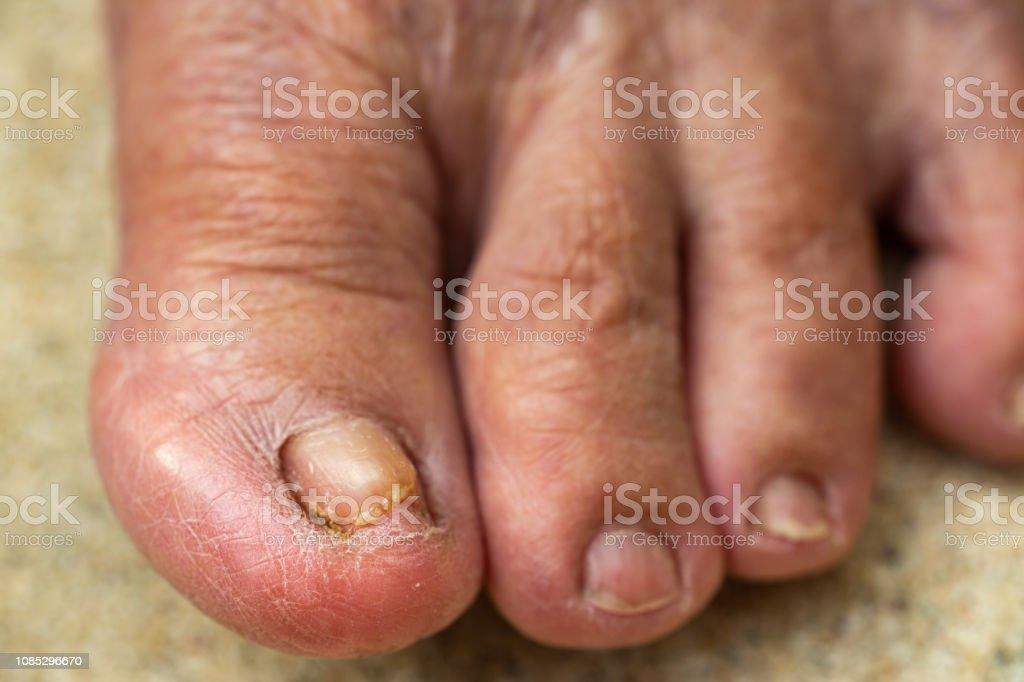 piel reseca entre los dedos delos pies