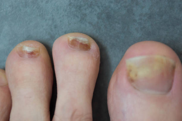 Damaged toenails stock photo
