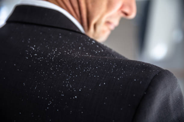 Dandruff Fallen On Businessperson's Shoulder Close-up Of A Businessperson With Dandruff On His Shoulder dandruff stock pictures, royalty-free photos & images