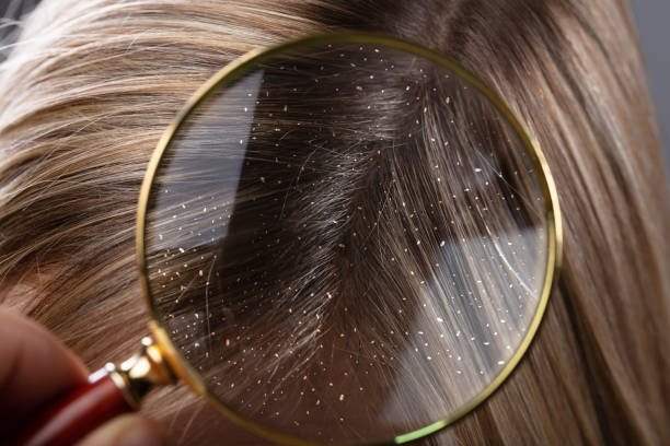 Dandruff In Hair Seen Through Magnifying Glass Close-up Of A Dandruff In Blonde Hair Seen Through Magnifying Glass dandruff stock pictures, royalty-free photos & images