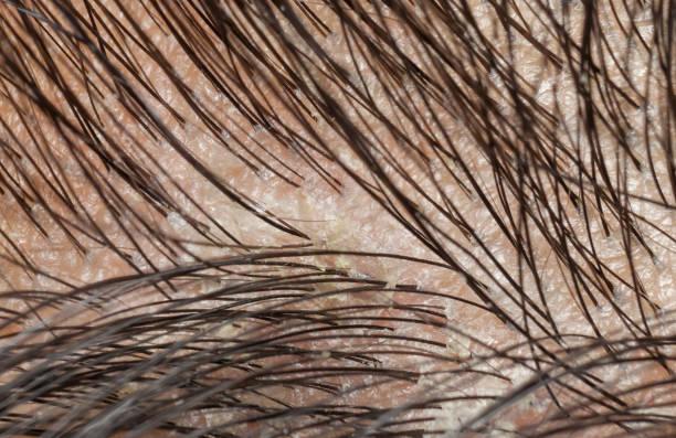 Dandruff in the hair and scalp. Macro shot stock photo