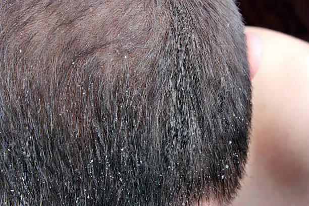 Dandruff in the hair stock photo