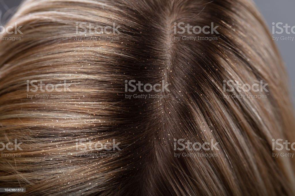 Schuppen In das Haar der Frau – Foto
