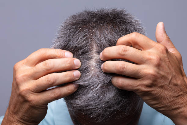 Dandruff On Man's Hair Mature Man With Dandruff Scratching His Head human scalp stock pictures, royalty-free photos & images