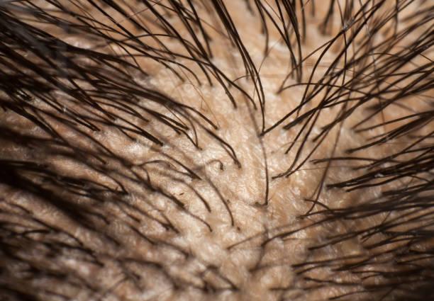 Dandruff on scalp and dark hair. Macro shot. stock photo
