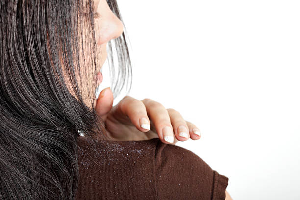 Dandruff Woman brushing dandruff on her shoulder.  dandruff stock pictures, royalty-free photos & images