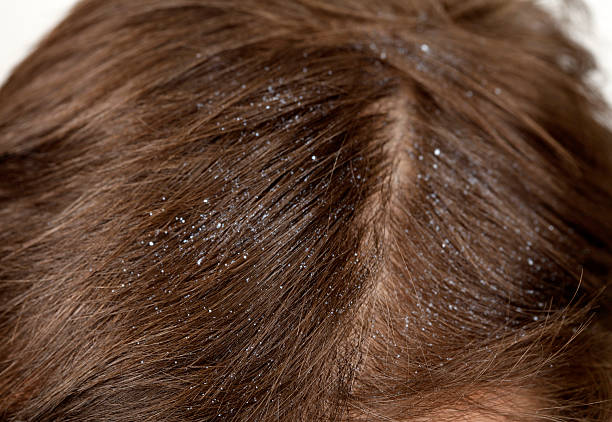 Dandruff Close up of dandruff dandruff stock pictures, royalty-free photos & images