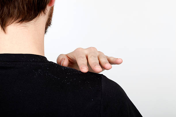 Dandruff Man brushing dandruff off his shoulder. dandruff stock pictures, royalty-free photos & images