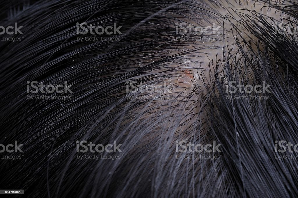 dandruff stock photo