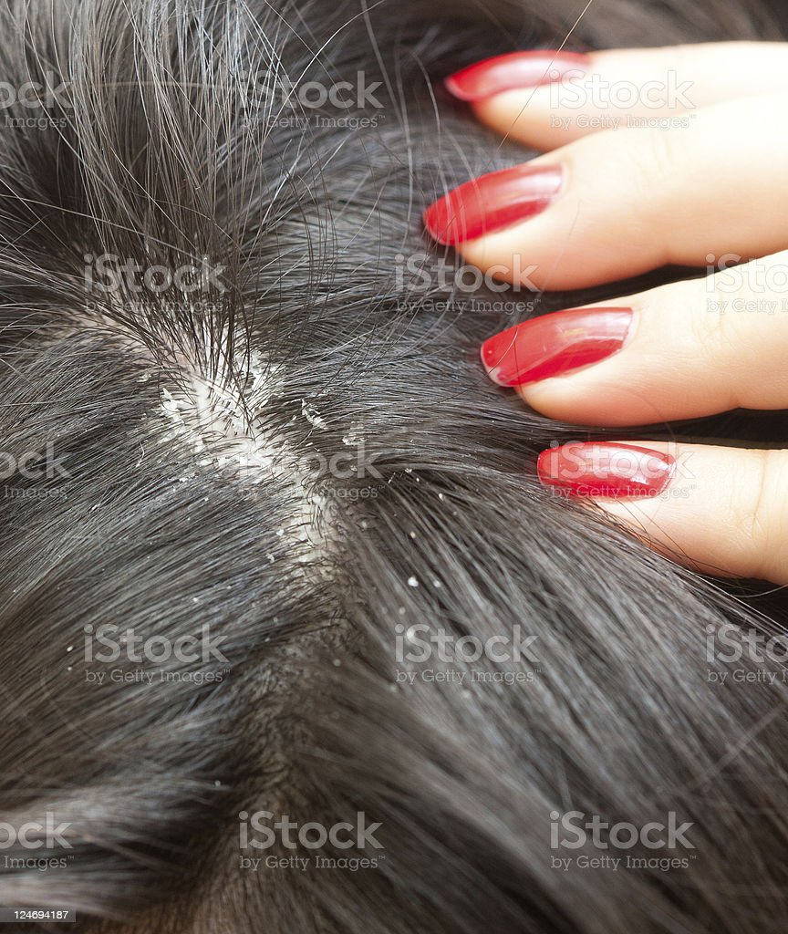 Dandruff problem stock photo