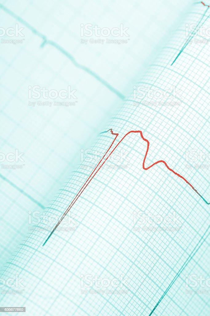 Dangerous symptoms on cardiogram stock photo