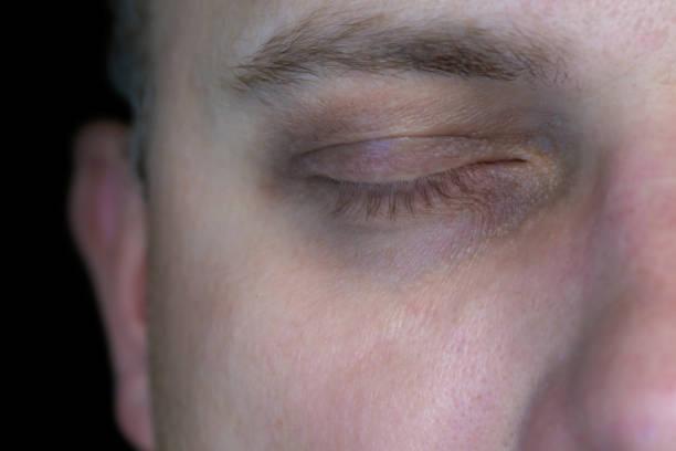 Dunkle Kreise unter den Augen als Zeichen von Müdigkeit und Erschöpfung – Foto