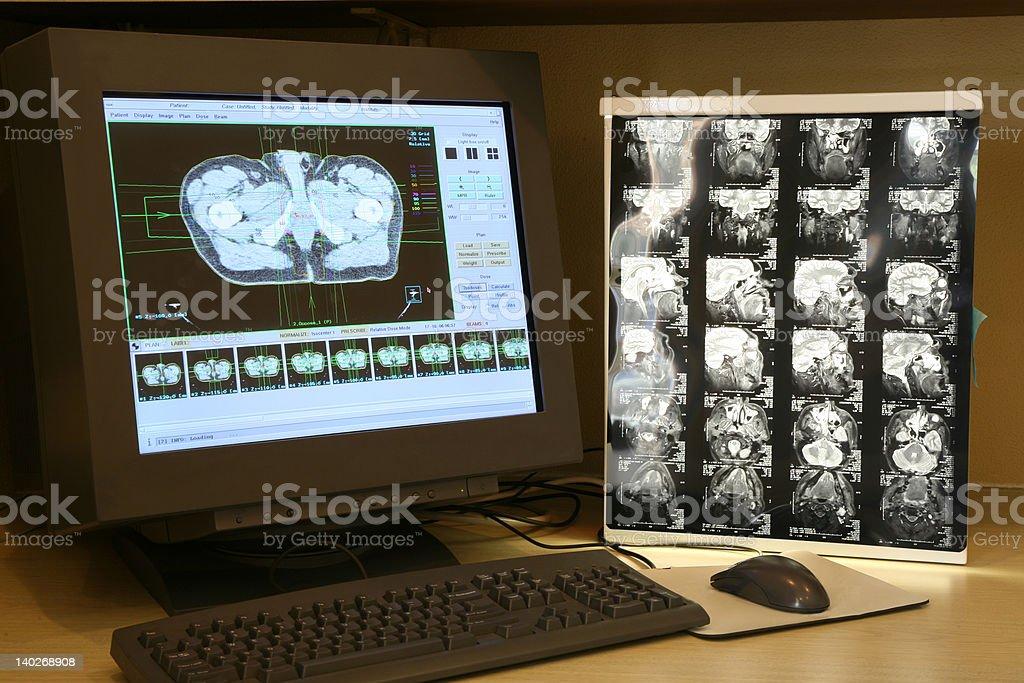 Monitoring human scan
