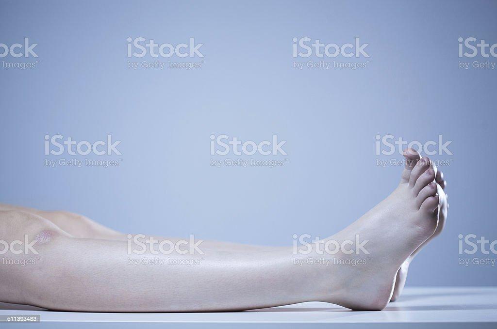 Dead body in morgue stock photo