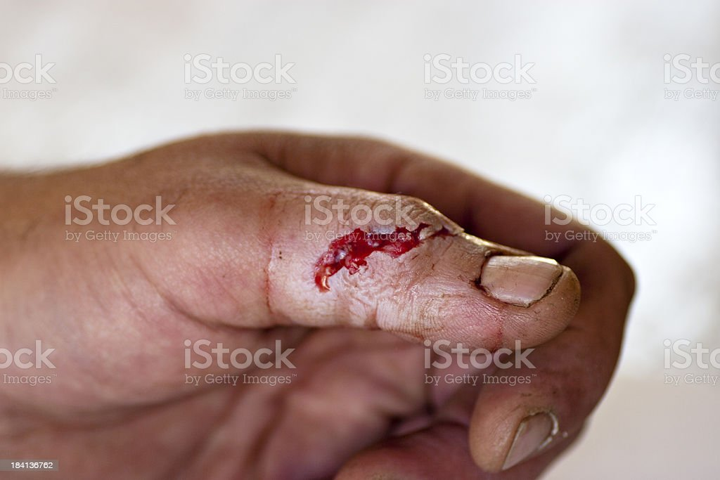Dealing with open wounds after injury from saw stock photo