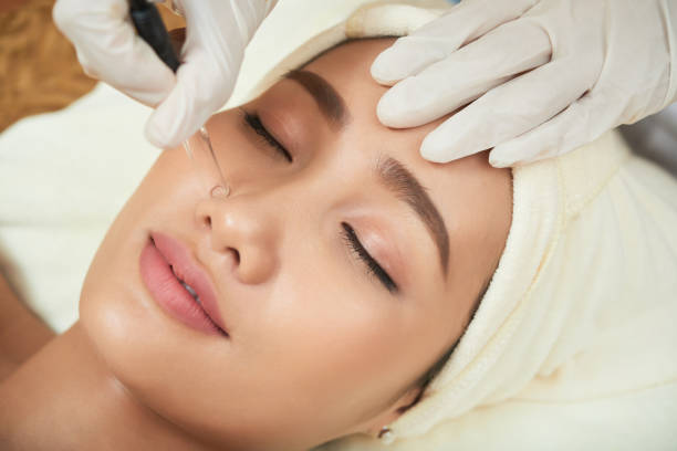 Deep cleansing procedure Face of attractive Vietnamese woman getting vacuum cleansing procedure suction tube stock pictures, royalty-free photos & images
