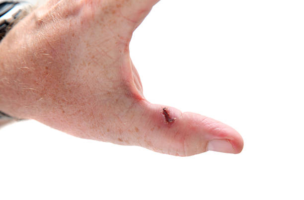 deep infected cut in thumb, beginning to heal stock photo