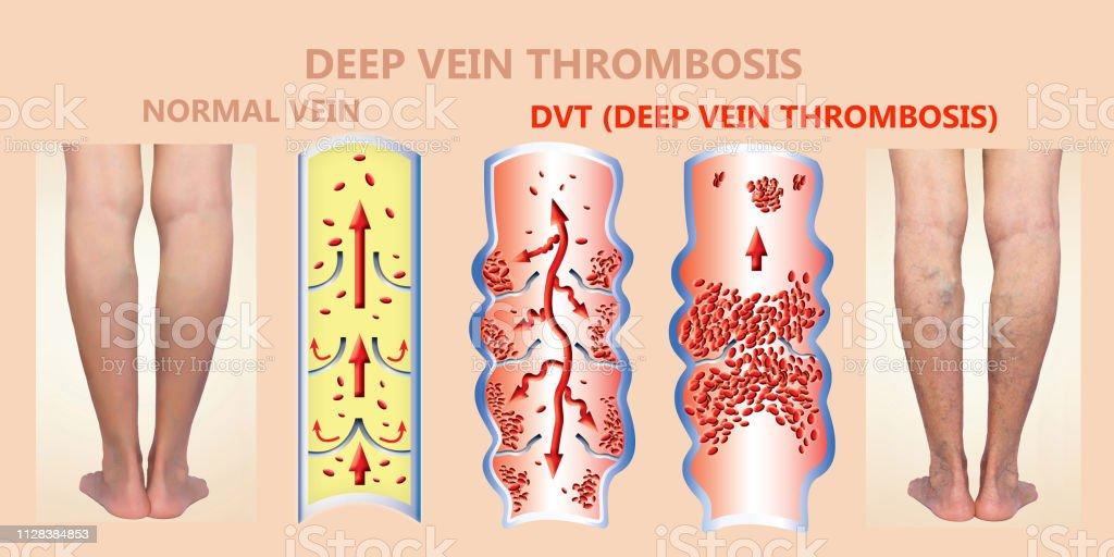 Deep Vein Thrombosis or Blood Clots. Embolus. stock photo