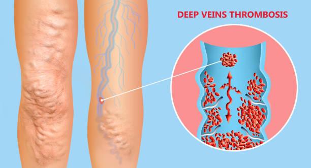 Tiefe Venenthrombose oder Blutgerinnsel. Embolus. – Foto