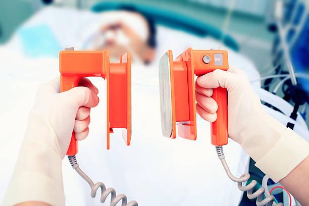 defibrillator electrodes in hands. Work in the ICU foto