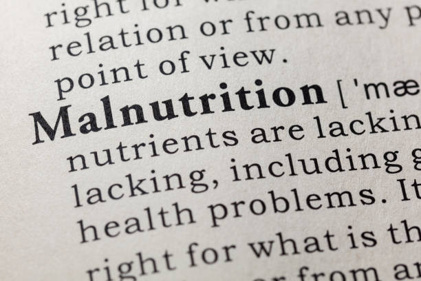 definition of malnutrition stock photo