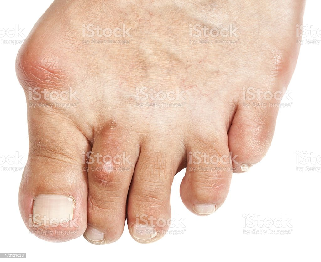 Deformed Foot  - Bunion royalty-free stock photo