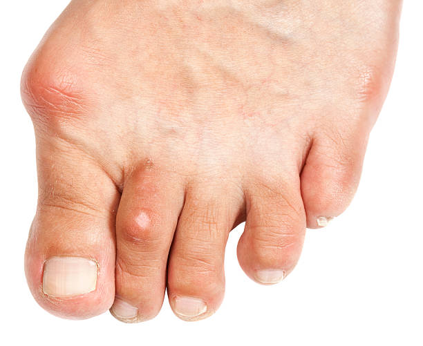 Deformed Foot  - Bunion stock photo