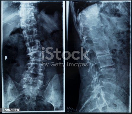 Severe degenerative scoliosis due to multiple disc prolaps on digital x-ray of the spine.