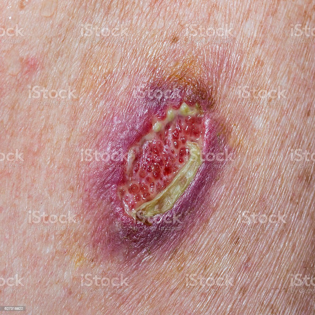 Dehisced Wound stock photo