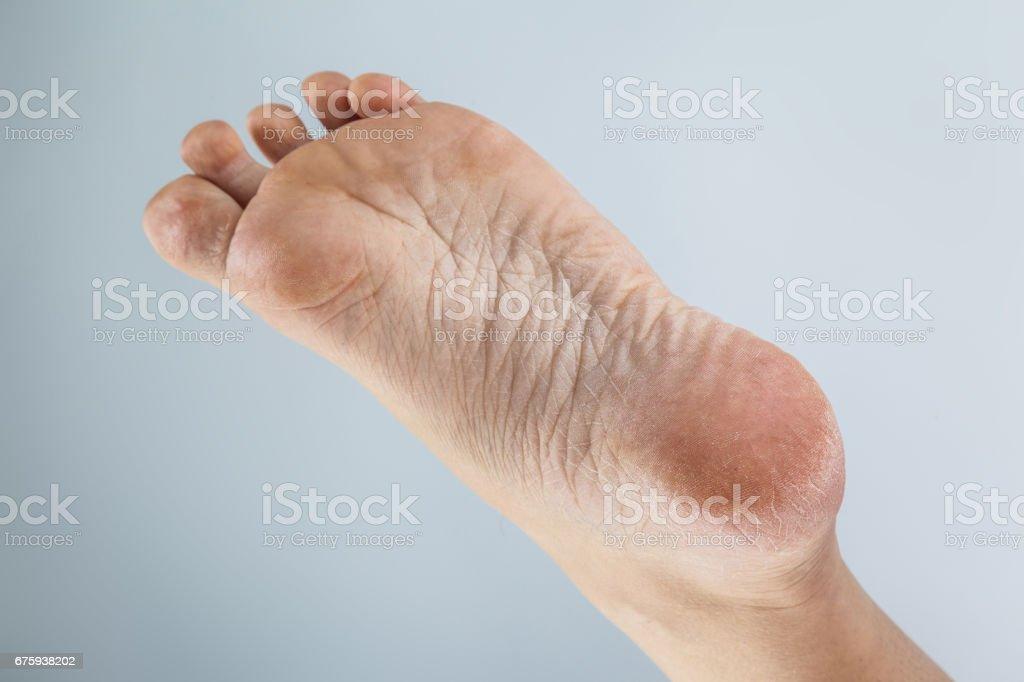 dehydrated skin female heels stock photo
