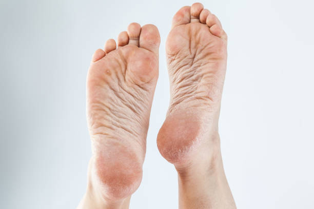 dehydrated skin female heels dry dehydrated skin on the heels of female feet with calluses sole of foot stock pictures, royalty-free photos & images