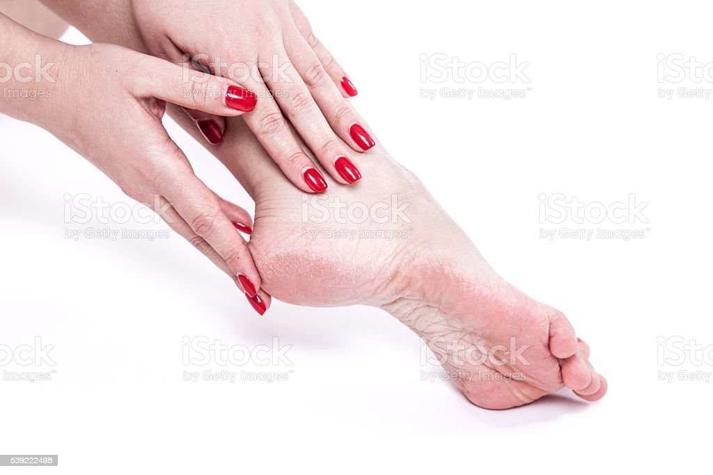 dehydrated skin on the heels of female feet with calluses stock photo