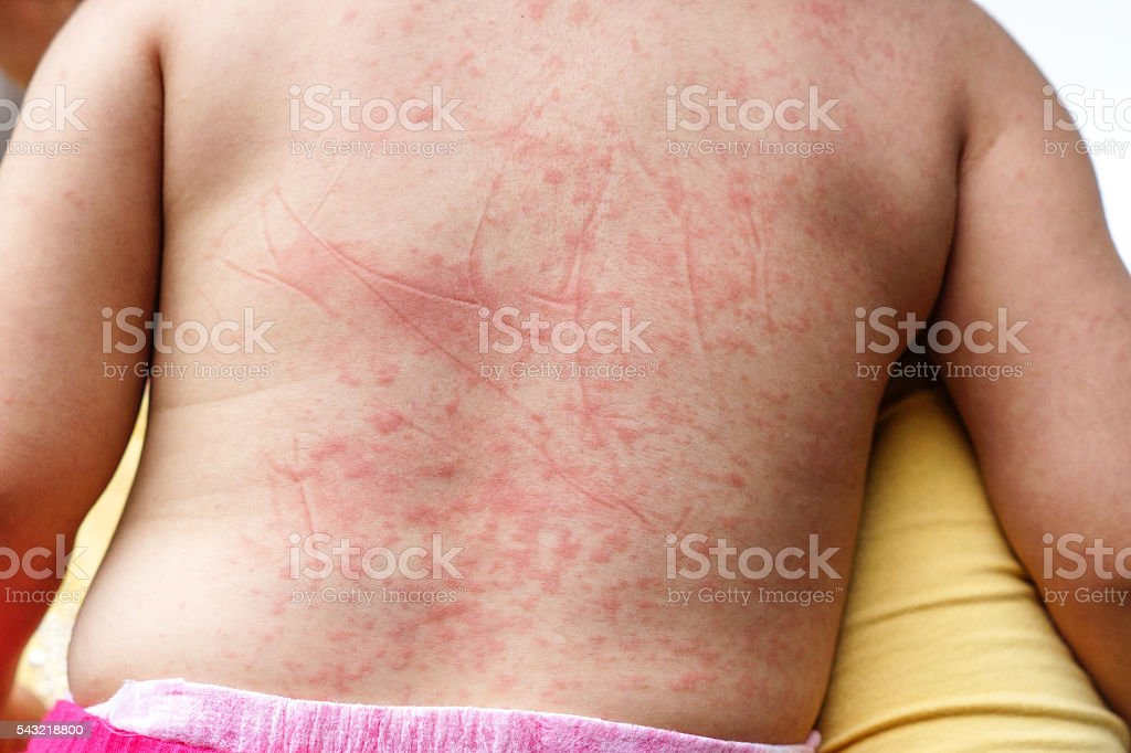 Dengue hemorrhagic fever stock photo