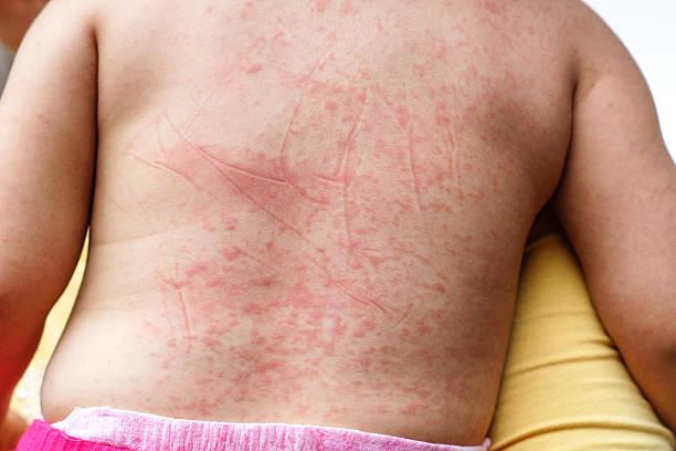 Dengue hemorrhagic fever stock photo