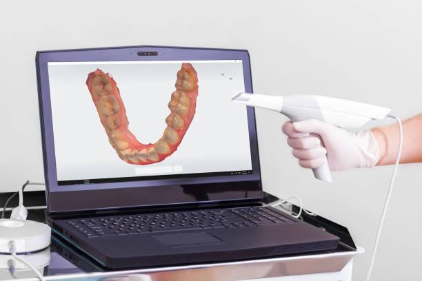 dental 3d scanner und monitor in der zahnarztpraxis - medizinischer scanner stock-fotos und bilder
