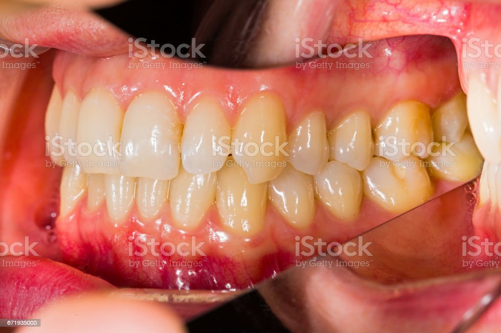 Dental anatomy stock photo