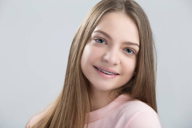 Dental and Oralcare Concepts.Portrait of Teenage Female Having Teeth Brackets. Posing with Smile Against White.Horizontal Image