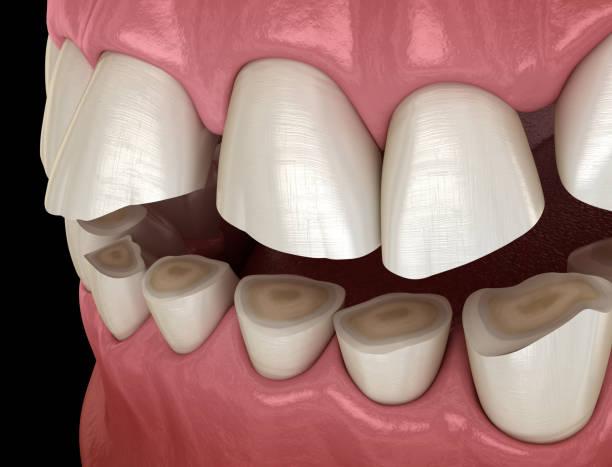 wyniszczenie zębów (bruksizm) w wyniku utraty tkanki zęba.  medycznie dokładna ilustracja 3d zębów - erodowany zdjęcia i obrazy z banku zdjęć