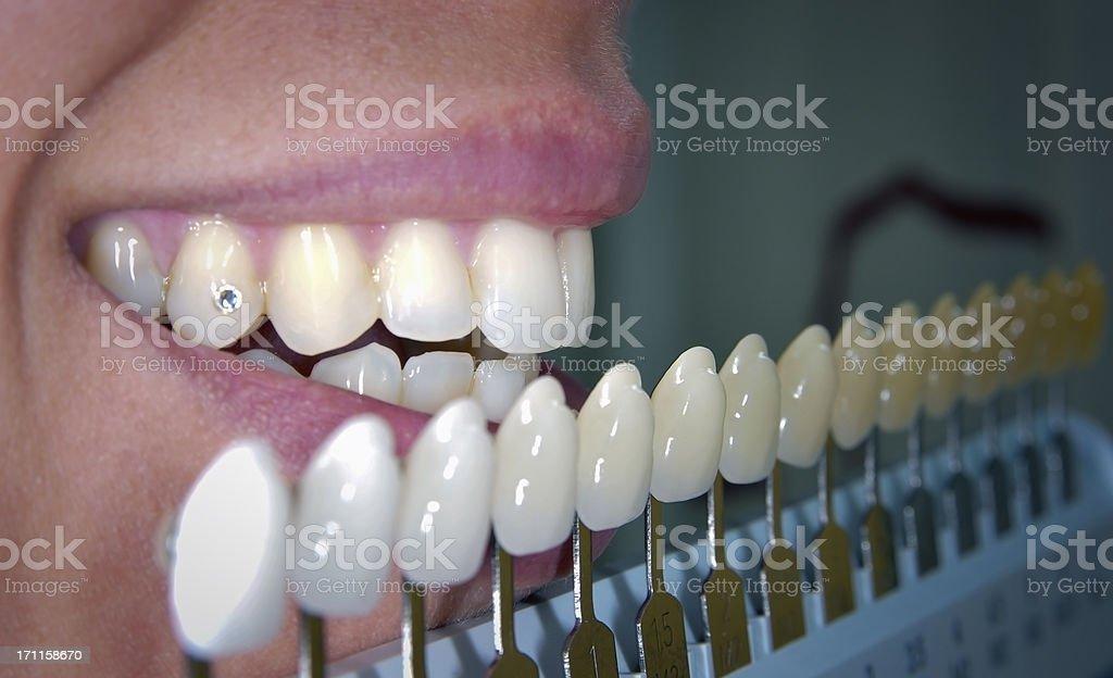 Dental bleaching treatment stock photo