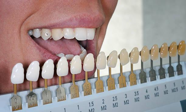 Dental Ausbleichungen Behandlung – Foto