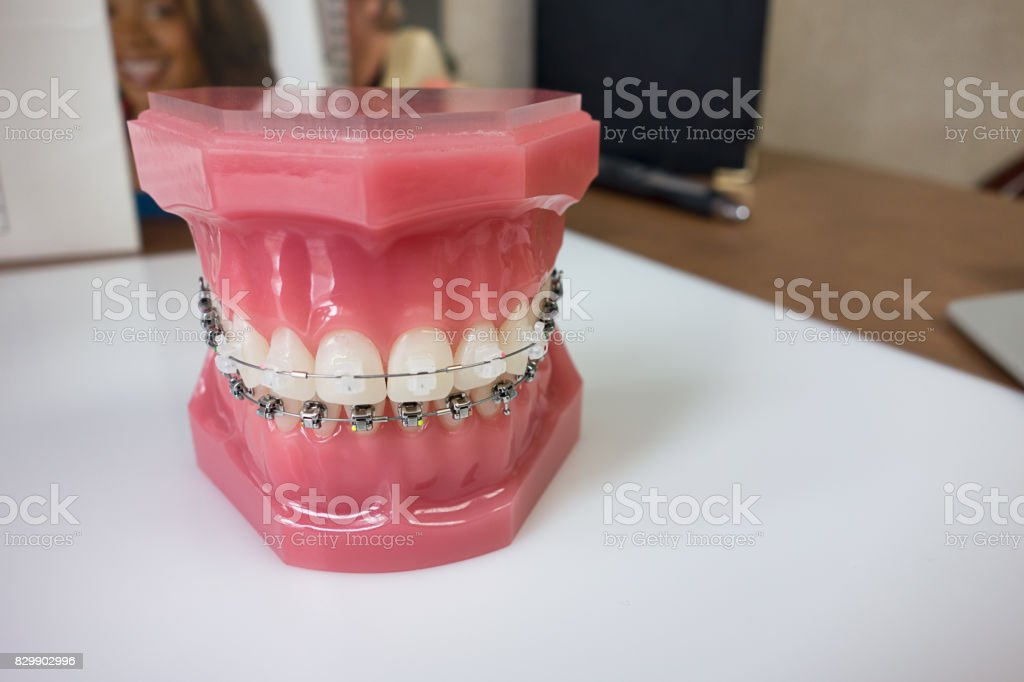 Dental braces model stock photo