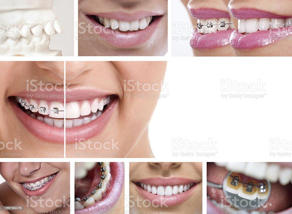 Aparatos de ortodoncia dentista - foto de stock