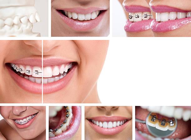 dental Aparelho ortodôntico - foto de acervo
